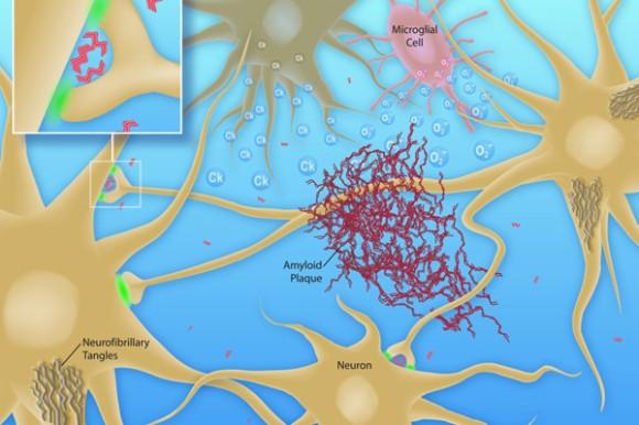 neuron-alzheimers-plaque