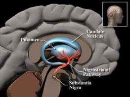 Parkinsons-brain-final